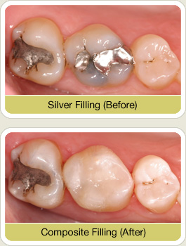 What Are Composite Fillings West Nyack Dentists Explains